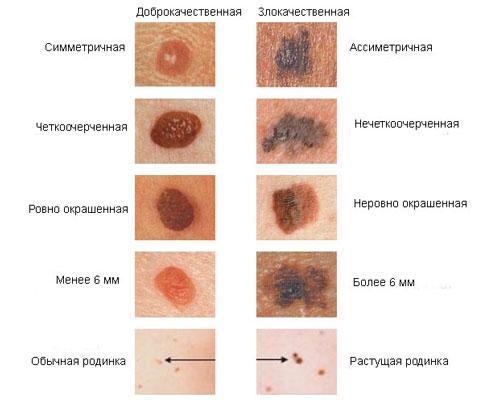 Рак кожи симптомы и признаки с фото – фото начальной стадии, первые признаки и симптомы, лечение. Как выглядит рак кожи на фото