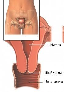 Рак шейки матки симптомы фото 45