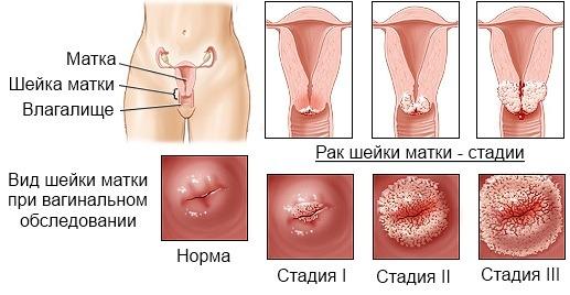 Рак шейки матки симптомы фото 12