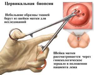 Рак шейки матки симптомы фото 47