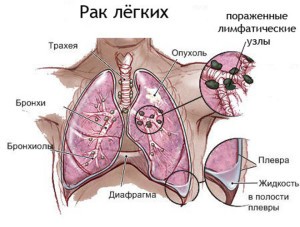Злокачественная опухоль легкого