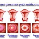 vidy-i-stadii-raka-shejki-matki