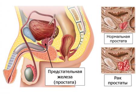 Какие препараты есть для повышения либидо у женщин