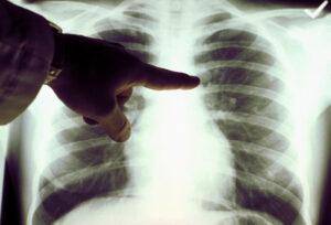Лечения народными рак дыхания
