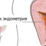 Схема лечения при раке матки