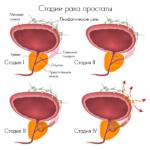 stadii-zabolevaniya