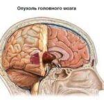 raka-golovnogo-mozga