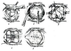 На фото  показаны этапы проведения энуклеации