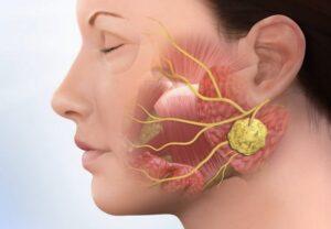 Рак околоушной слюнной железы лечение