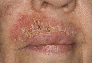 Плоскоклеточный ороговевающий рак кожи