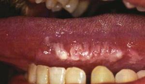 Волосистая лейкоплакия языка