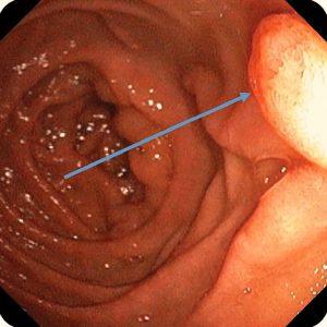 Рак желудка на эндоскопии