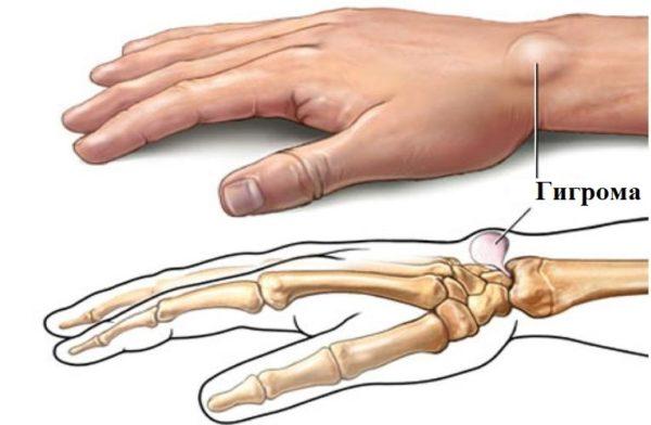 Ганглий (гигрома) менисков, сухожилия, суставов