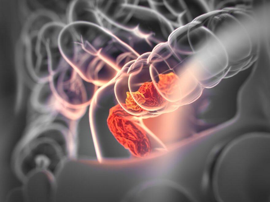 диагностики колоректального рака