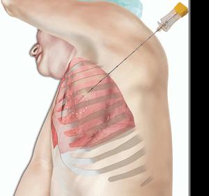 Биопсия легкого. Методы ранней диагностики рака легкого
