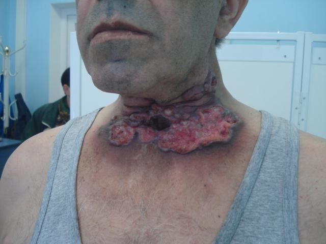 рак лимфоузлов горла
