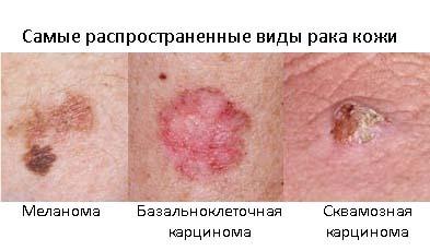 Фото рака кожи