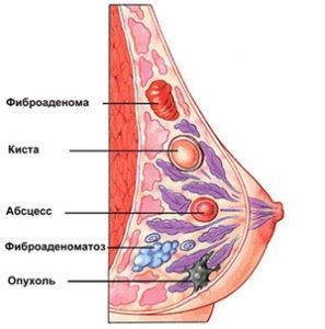 как определить рак грудины у женщин фото № 68516 загрузить