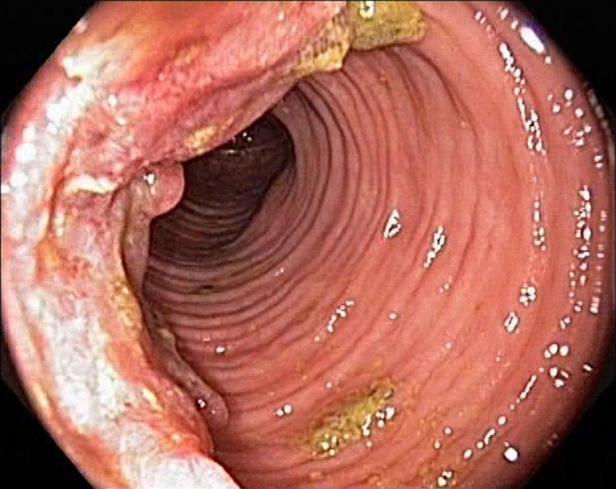 Раковые метастазы