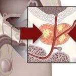 Рак простаты 4 стадии