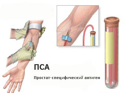 Формы симптомы простатита