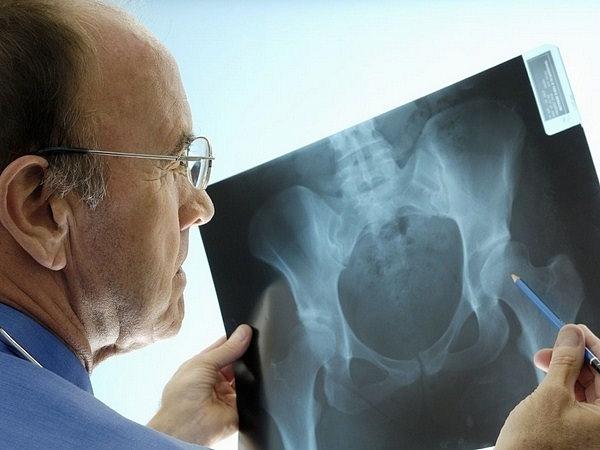 Увеличение предстательной железы-симптомы