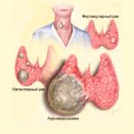 klassifikaciya-raka-shhitovidnoj-zhelezy-i-prognoz-dlya-zhizni
