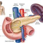 skolko-zhivut-lyudi-s-rakom-podzheludochnoj-zhelezy-4-stadii