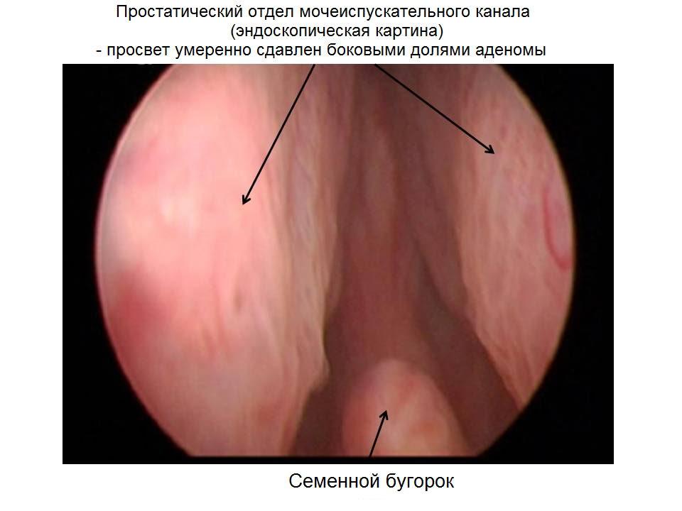 Лечение простатита методом гуськов