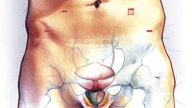 Рак предстательной железы чем опасен