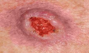Плоскоклеточный рак кожи с изъязвлением