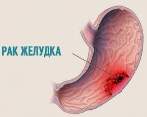 Рак желудка, схема